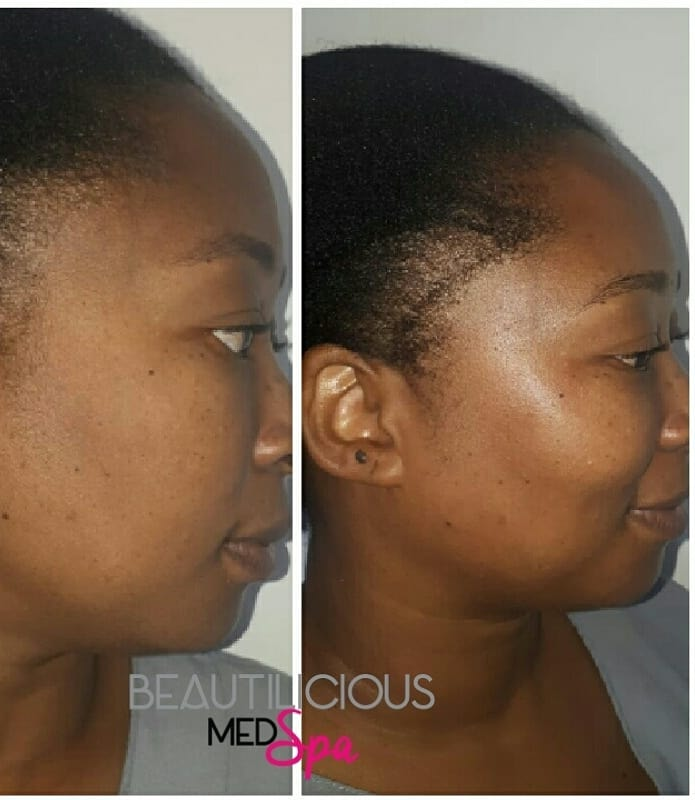 Beautilicious Med Spa